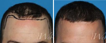 Male Hair Restoration Middle Tennessee