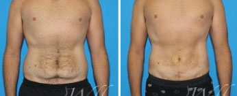 Male Lipo Middle Tennessee