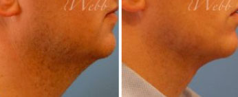 Male Neck Lipo Middle Tennessee