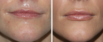 Injectable Filler Middle Tennessee
