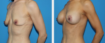 Breast Lift Middle Tennessee