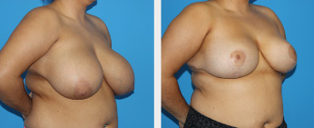 Breast Reduction Middle Tennessee