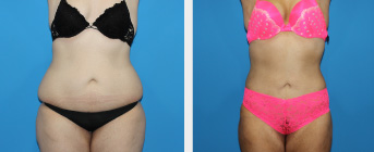 Liposuction Procedure Middle Tennessee