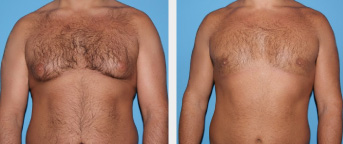 Plastic Surgery Procedures for Men in Middle Tennessee