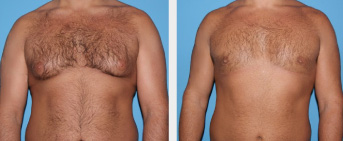 Male Breast Reduction Middle Tennessee