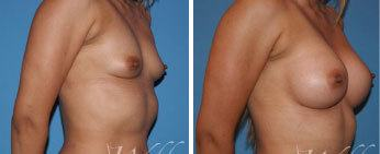 Breast Augmentation Middle Tennessee